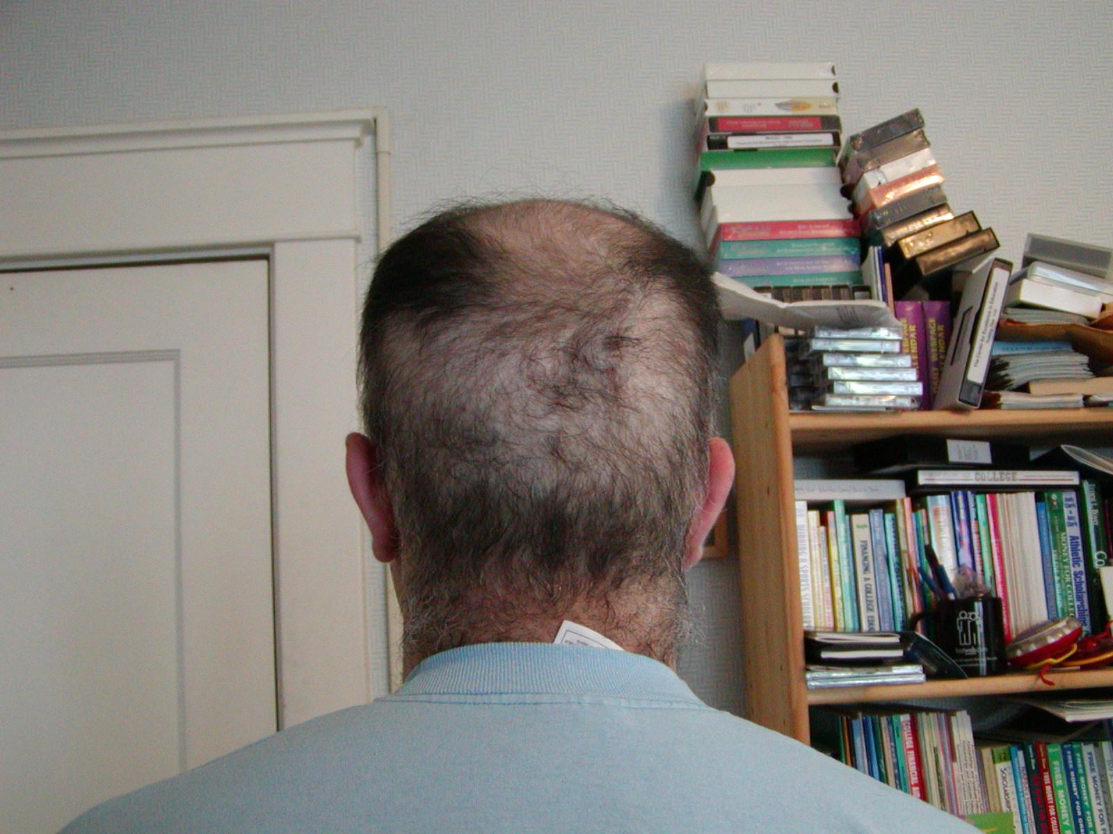 nohair Cancerous Moles Itch